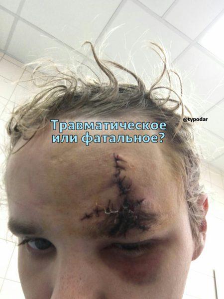 Стреляли из травматического пистолета в голову